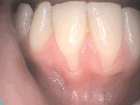 Before gum recession treatments